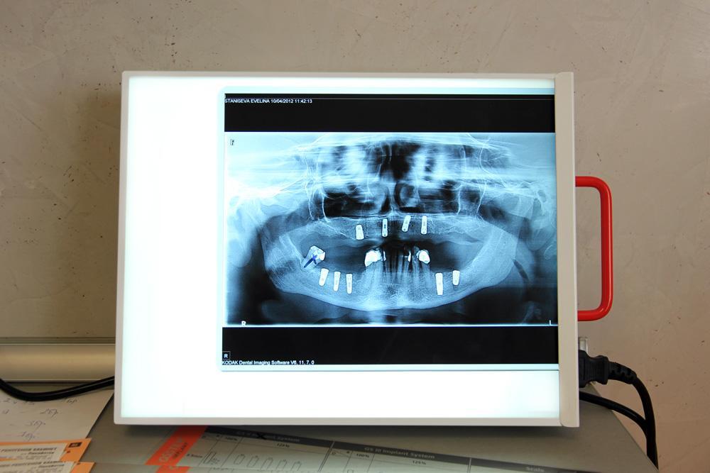implanti2